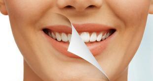 Inilah 7 Cara Memutihkan Gigi Secara Alami Dan Cepat Tanpa Ada Efek Samping