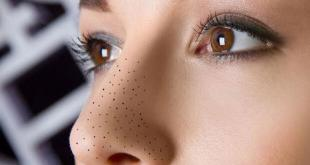 7 Cara Menghilangkan Komedo Di Hidung Secara Alami Yang Wajib Anda Ketahui