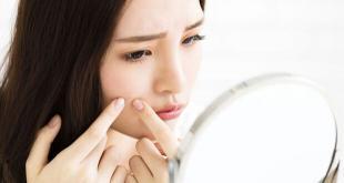 7 Cara Merawat Wajah Berjerawat Dengan Mudah Hanya Modal Bahan Alami